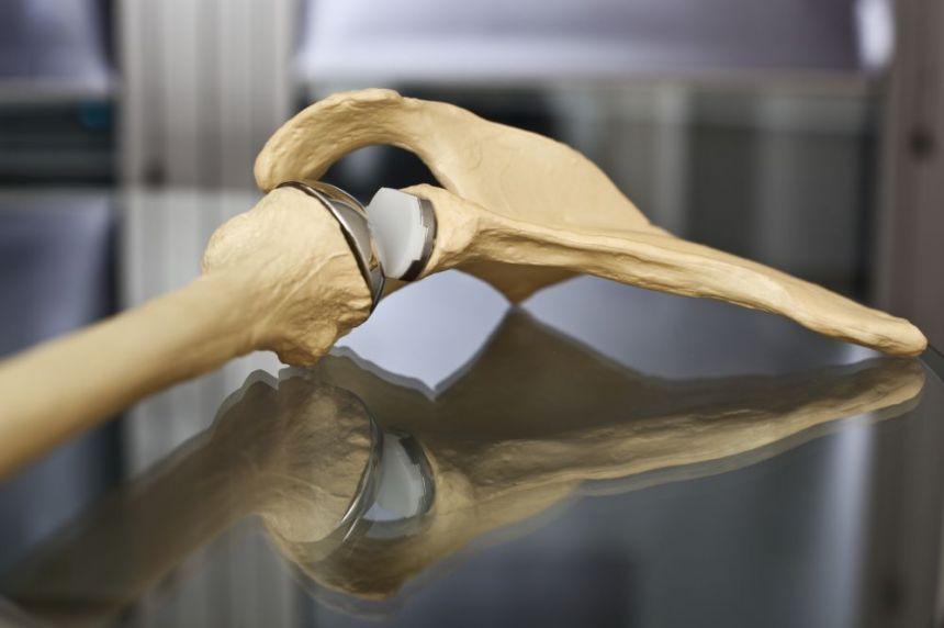 Die anatomische Schulterprothese | go:h Gelenkchirurgie Orthopädie ...